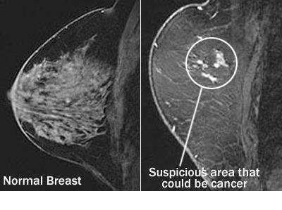 breast mri machine