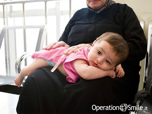 """""""Youssef, 4 mesi, arriva in ospedale con la nonna, sua madre ha appena perso il marito ed il lutto le impone di rimanere in casa per 40 giorni. Youssef piange continuamente, forse perché non ha la mamma vicino. Neppure la nonna riesce a calmarlo, lo culla con dolcezza, ma lui continua a piangere. Poi, come per #miracolo, il giorno dopo l' #intervento quel pianto disperato scompare, nonostante l'operazione e i punti, il #bimbo #sorride a tutti, è sereno.""""  Leggi la storia di Youssef"""