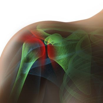 Over 45? How You Can Deal With Rotator Cuff Injuries Rotator cuffs fray, tear due to falls, shoulder strains