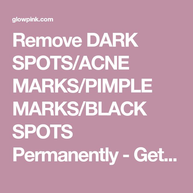Remove DARK SPOTS/ACNE MARKS/PIMPLE MARKS/BLACK SPOTS Permanently - Get 100% Spotless Skin in 3 Days - Glowpink