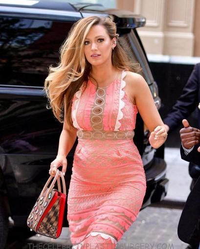 blake lively 2016 after plastic surgery