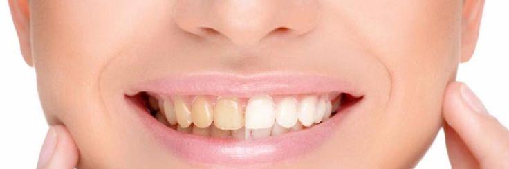 Wittere tanden in slechts 3 minuten, gewoon thuis!