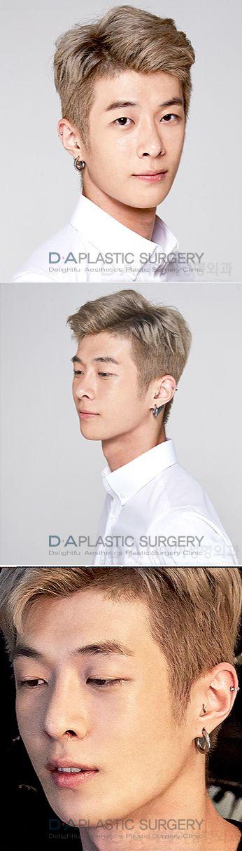 "Korean show ""Reborn project for men"" Episode #3  Dr Sang Woo Lee finder of DA plastic surgery male transformation  ***Full video/story coming soon  #DAPRS #DaPlasticSurgery #PlasticSugery #Reborn #SecondChance #CosmeticSurgery #PlasticSurgeryForMen #MalePlasticSurgery #Transformation #BeforeAndAfter #Korea #Model #KoreanGuy #KoreanBeauty #RebornProject #Rhinoplasty #FacialContouring #KoreaPlasticSurgery #EyeSurgery #AsianPlasticSurgery"
