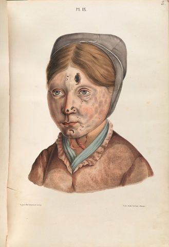 The face of a 13-year-old girl with leprosy. Photograph: Wellcome Images