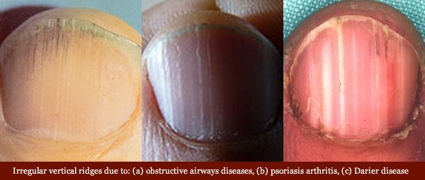 Fingernails and disease don't go together in most minds… but they should. Your fingernails can give you valuable health warnings and signal ...