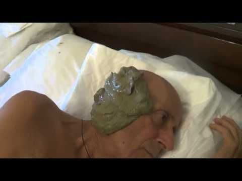 ▶ Fangoterapia orecchio - YouTube
