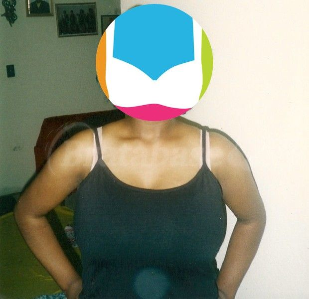 My Breast Reduction 10 Years Later Part 1 Bratabase