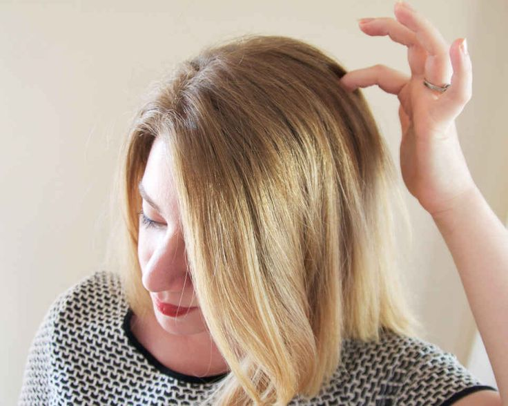 Common Causes Of Itchy Scalp That Will Make You Cringe - xoVain
