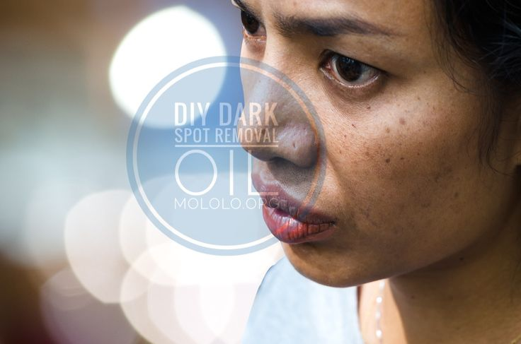 "You're probably asking, ""how to remove dark spots on face"" or ""how to get rid of dark spots."" Whichever questions you might have been asking your friends about the dark spots on your skin, this DIY dark spot removal will provide the best answer to them. What makes this dark spots removal more fun"