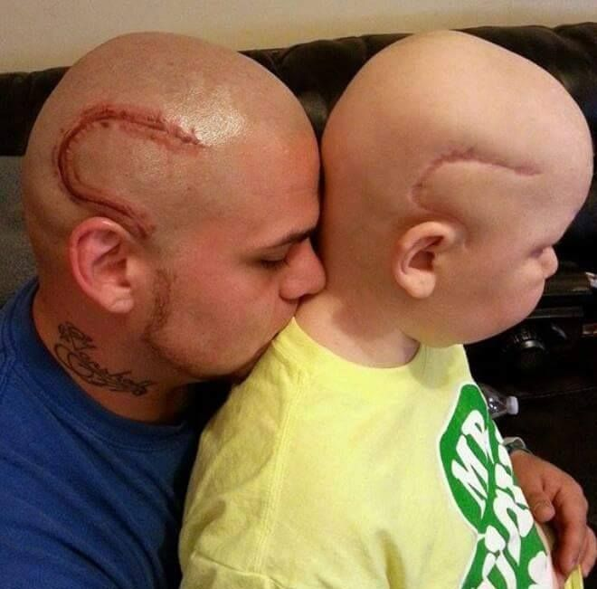 Loving Father Gets an Intricate Head Tattoo to Match His Son's Brain Cancer Surgery Scar
