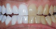 Elle mélange 3 ingrédients et les met sur ses dents : vous devez absolument essayer !