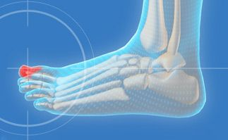 Ingrown Nail – Causes and Chiropody Treatment in Scarborough