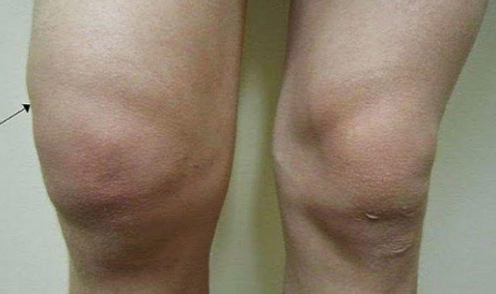 Najlepší domáci recept na bolesti a vodu v kolene. Stav sa zlepší už za 3 dni - Báječný lekár