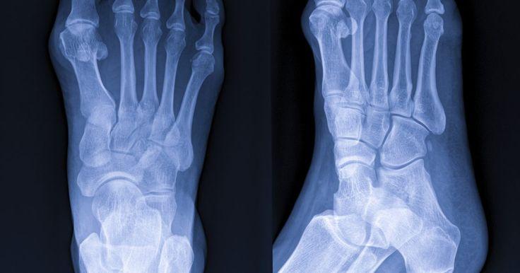 """Como escolher sapatos para evitar os sintomas do neuroma de Morton. O neuroma de Morton é um espessamento em torno de um nervo que normalmente ocorre entre o terceiro e o quarto dedo do pé. No Brasil, a condição também é conhecida como neuroma digital plantar ou pé grego. O sintoma mais comum é a dor, que pode ser do tipo """"agulhada"""" ou """"queimadura"""", de maneira que é possível senti-la irradiar para cima ou para ..."""