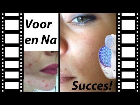 Hoe ik van mijn Acne Af Kwam: Mijn Succesverhaal, met Natuurlijke Methoden! - YouTube