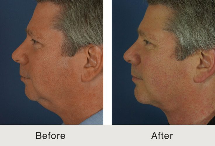 If the chin is small because of bone absorption or a patient was born with a weak chin, then a chin implant or non-surgical chin augmentation may be a great option. Find out more about chin implants at Carolina Facial Plastics.