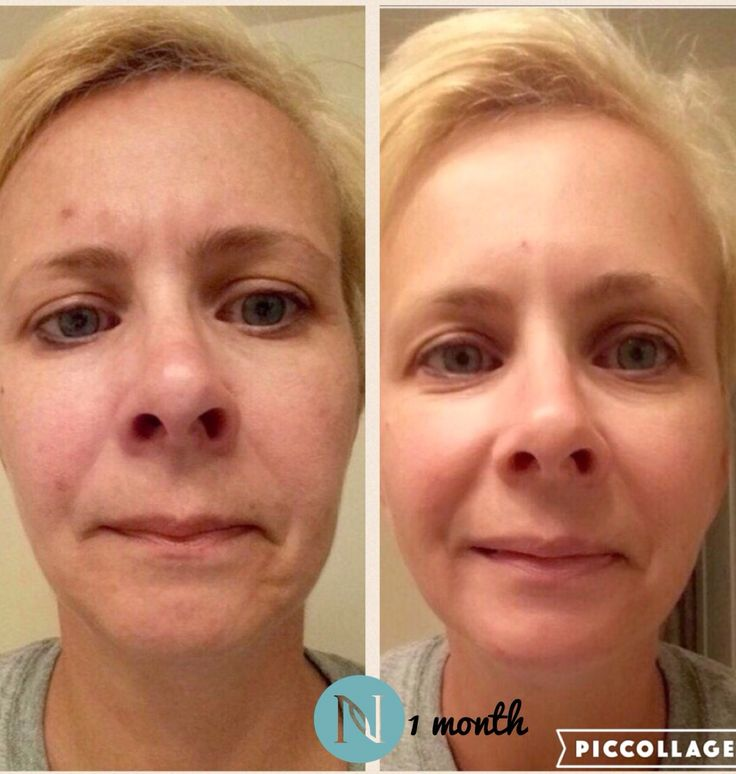 This is my friend Sharon's 30 day results using Nerium AD Night Cream!! You can order & try for up to 30 days & STILL get a full refund if not happy. #antiagingcream #neriumad