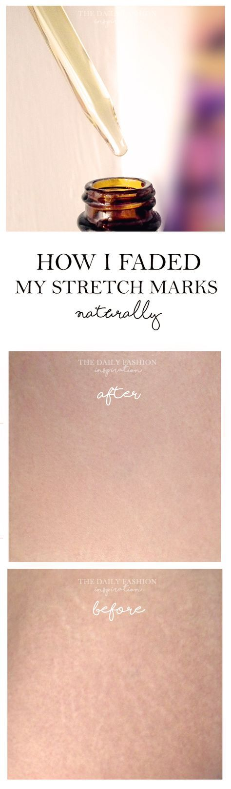 Updated on:19th July, 2016 Pinterest Facebook Twitter Google+ BufferToday I am sharing with you my natural method of treating stretch marks, explaining the products needed and the applications tips (I have also took before / after pics). Many women are wondering how to remove stretch marks and I was one of them. I did start … … Continue reading →