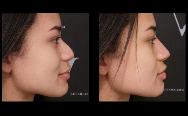 Non-Surgical Nose Job before and after: perfect nose in 10 minutes! #nonsurgicalnosejob #nosejob #nose #rhinoplasty #nonsurgical #revereclinics #filler #fillers #dermalfiller