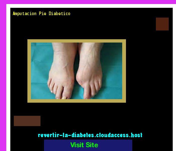 Amputacion Pie Diabetico 171318 - Aprenda como vencer la diabetes y recuperar su salud.