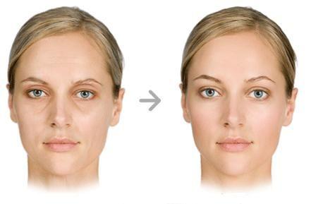 Cearcanele sunt rezultatul faptului ca circulatia sangelui in vasele mici de sub ochi este perturbata, sangele este mai putin oxigenat, si de aceea, apare o pigmentare in jurul ochilor, spre vanat.  Acidul hialuronic reprezinta cea mai simpla si eficienta metoda de indepartare a cearcanelor.