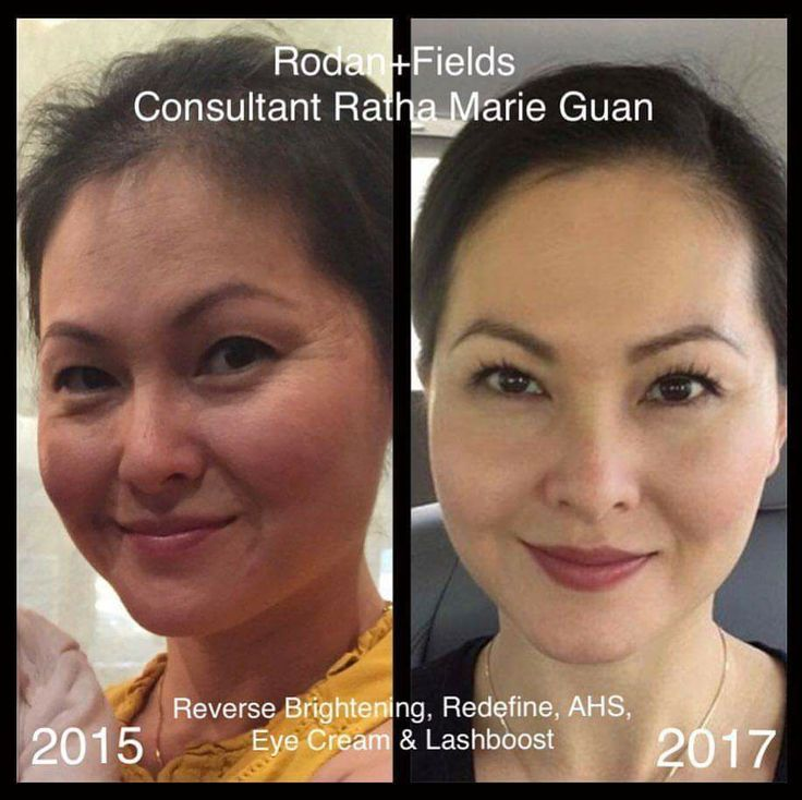 """""""I started using RF products last year in 2016 with Reverse Brightening, Eye Cream and Lashboost. This year I've switched to Redefine and added the Active Hydration serum. It helped transformed my skin! Now, I get to help many others improve their skin too. It's the best feeling!"""""""