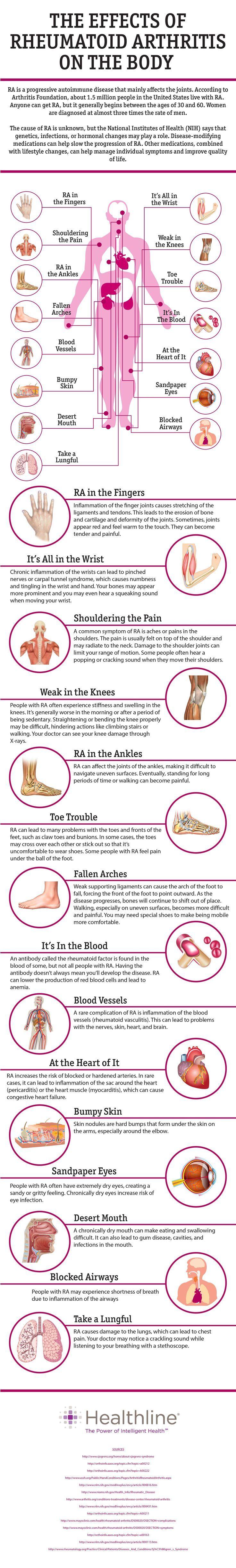 The Effects of Rheumatoid Arthritis on the Body.