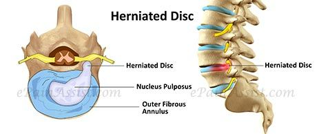 Herniated Disc Read: http://www.epainassist.com/question-and-answer/herniated-disc