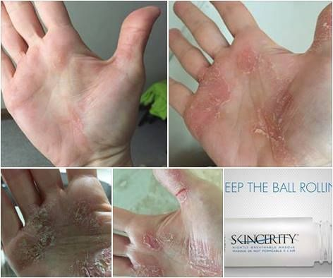 Eczema on the hands is a tough one but with consistent use of SKINCERITY, magic happens. https://www.facebook.com/SuzannesSkinMagic