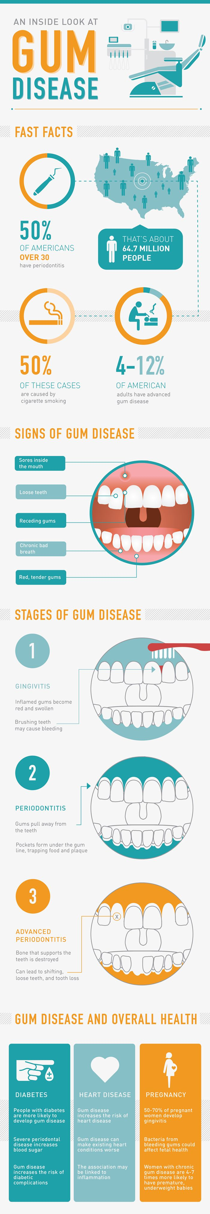 Prisma Dental News -Preventive #Periodontal Treatment  Gum disease is one of the most common #dental problems that affect populations all over the world, regardless of a person´s age. Whether it involves only minor gum inflammation, or if it is in a more severe stage such as #gingivitis or #periodontitis, the condition requires to be treated immediately to avoid major damage to a person´s #oralhealth.  http://prismadental.com/perio-protect-the-non-invasive-preventive-periodontal-treatment/