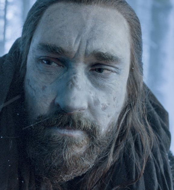 After the last episode of Game of Thrones you can just call him Uncle Coldhands.