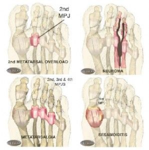 Ball of Foot Pain Diagrams   Foot exercisescuneiform bone   Foot pain  Heel pain  Plantar fasciitis