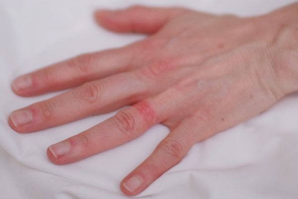 metal allergy wedding ring