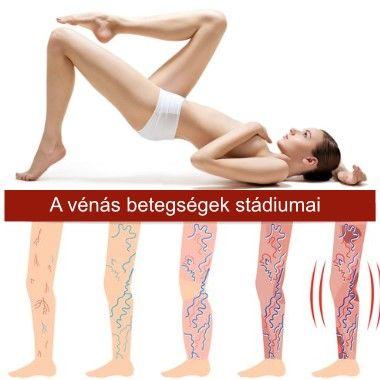 Sarkunkban a jó idő, és visszeres a lábad? ORVOSI visszértágulat eltüntető kezelés (szkleroterápia) konzultációval. Utókezelés sem szükséges. 2 helyszínen is, 52% kedvezménnyel