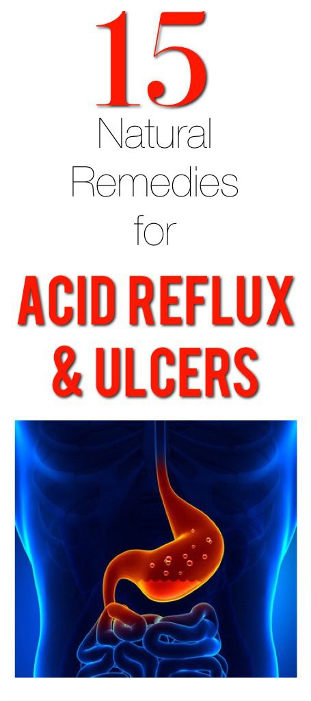 15 Natural remedies for the treatment of acid reflux and ulcers... these are good