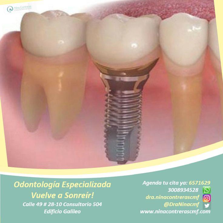 Especialistas en Implantes y Prótesis Dentales. Sonríe con libertad! Agenda tú cita ya y déjanos conocer tu caso: Pbx: 6571629 - WhatsApp: 3008934528 http://ninacontrerascmf.com/
