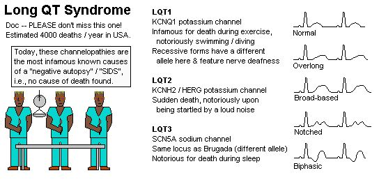 long qt syndrome essay Long qt syndrome (lqts) is a congenital disorder characterized by a prolongation of the qt interval on electrocardiograms (ecgs) and a propensity to ventricular tachyarrhythmias, which may lead to syncope, cardiac arrest, or sudden death (see etiology, prognosis, presentation, and workup.