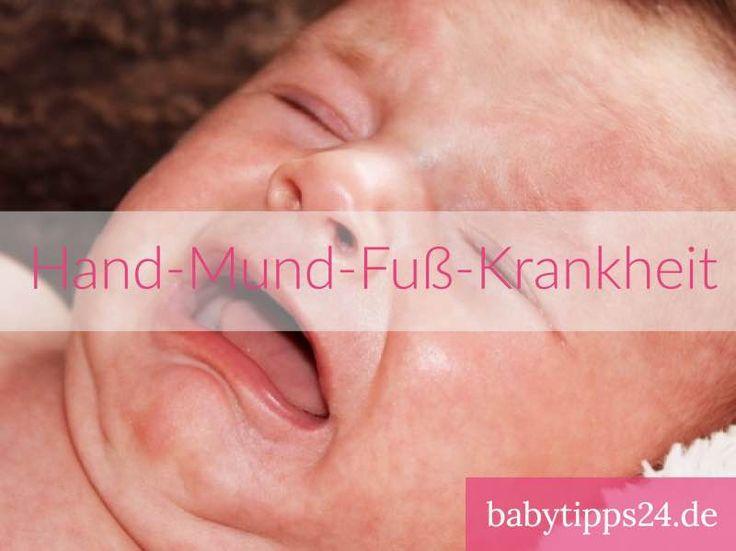 Hand Mund Fuß Krankheit bei Babys