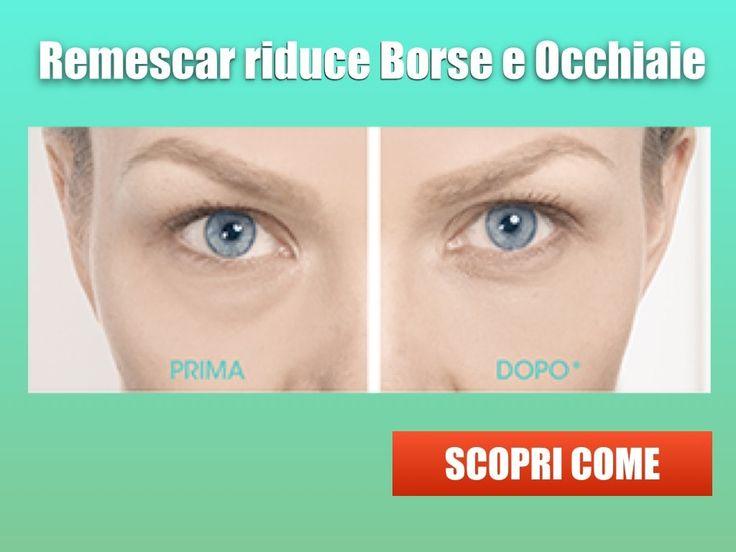 Non crederete ai vostri occhi: Remescar funziona davvero contro #Borse e #Occhiaie Leggi di più e Guarda il video! https://www.bravafarmacia.it/contorno-occhi-e-bocca/7601-remescar-borse-e-occhiaie.html