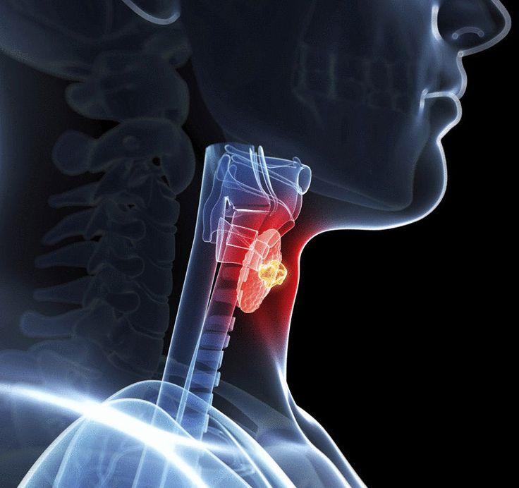 Лечение щитовидной железы —упражнение «Плывущая лягушка»