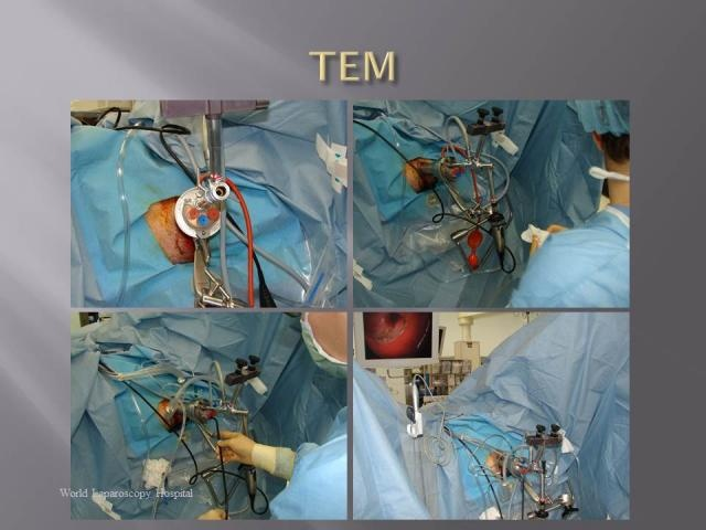 The technology of microsurgery