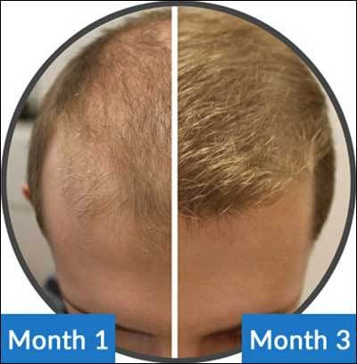 SM04554 is a glimmer of hope for all Baldness and Hair Loss sufferers around the world especially Men and could be the future of Hair Loss Cure. Find Out Why
