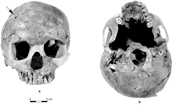Three-dimensional imaging of a Palaeolithic child's skull reveals potentially violent head trauma that likely lead to brain damage, according to a study published July 23, 2014 in the open-access journal PLOS ONE by Hélène Coqueugniot and colleagues from CNRS -- Université de Bordeaux and EPHE.
