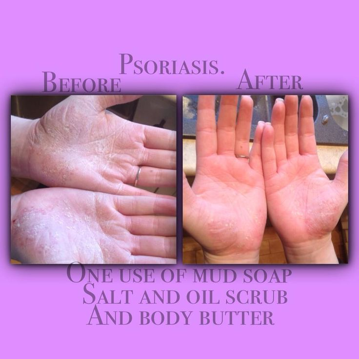 Natural remedy for Psoriasis using dead sea minerals. http://www.seacretglobalmember.com/
