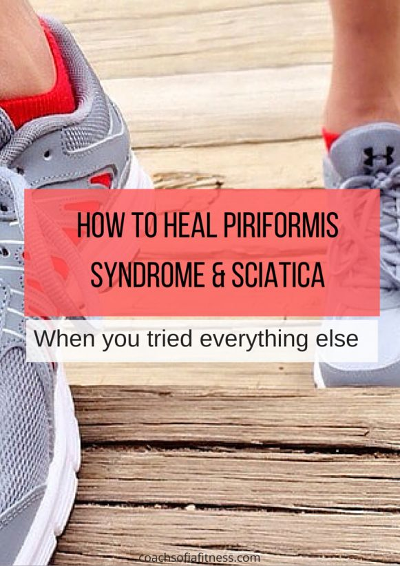 I put a list of unconventional treatments to piriformis ...