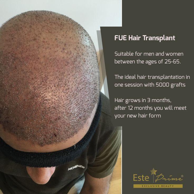 Park Art|My WordPress Blog_Famous Guys With Hair Transplants