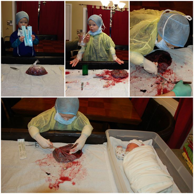 Playing surgeon.  Placenta dissection at home, after a new sister arrived.