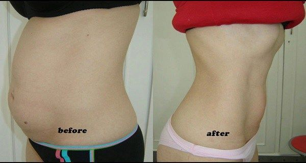 You Can Say Goodbye To The Abdominal Fat In Just 2 Weeks With This Homemade Remedy! #bellyfatburnerovernight