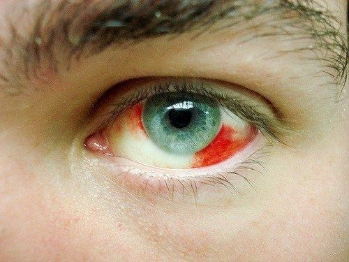 emorragia occhio