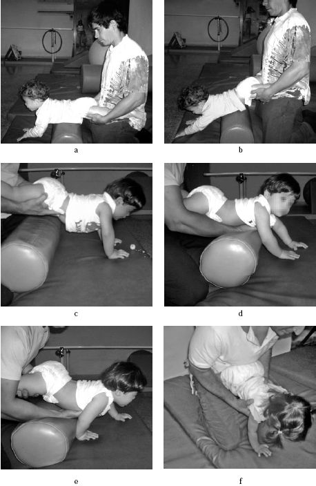Fisioterapia y Terapia Ocupacional: TÉCNICAS DE ESTIMULACION PROPIOCEPTIVA Y…